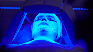 Acne Blue Light Therapy Treatment - Get Acne Free Skin Faster