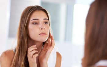 How To Naturally Reduce Acne Breakouts With Antioxidants