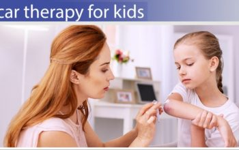 8 Tips On How To Remove Scars In Children