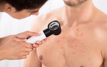 Body Acne Treatment