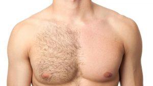 Chest Hair Elimination