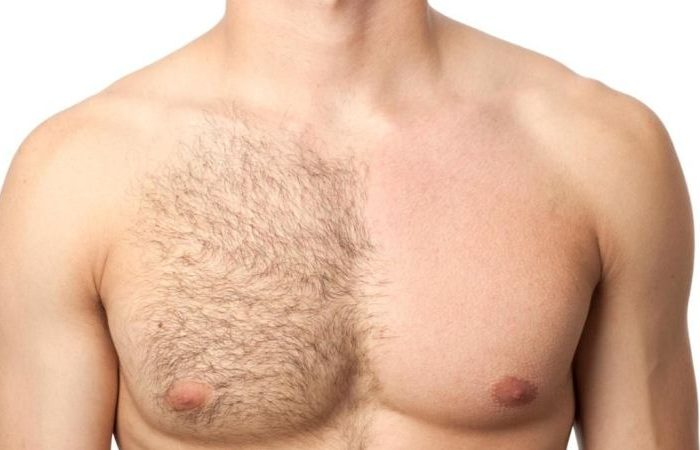 Chest Hair Elimination