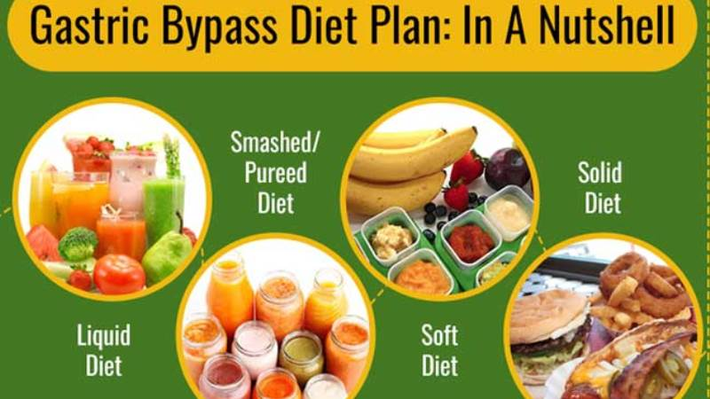 Phases Of Diet Post a Gastric Bypass