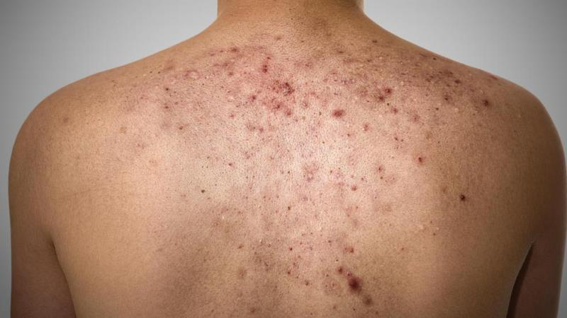 How To Get Rid Of Acne On Your Back – 6 Curing Tips