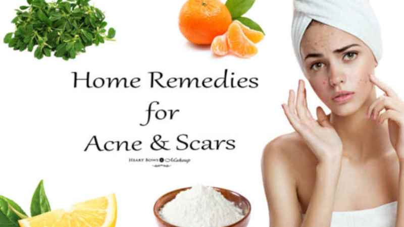 Home Remedies To Get Rid Of Acne – 10 Natural Acne Curing Tips